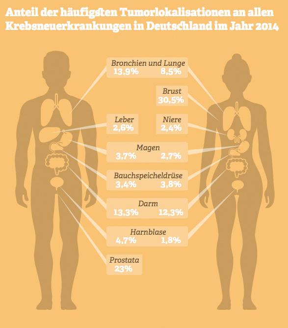 Grafik: Anteil der häufigsten Tumorlokalisationen an allen Krebsneuerkrankungen in Deutschland im Jahr 2014. Quelle: Statistisches Bundesamt, 2015