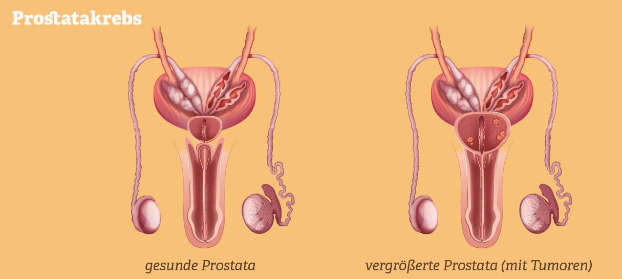Grafik: Gesunde und vergrößerte Prostata im Vergleich