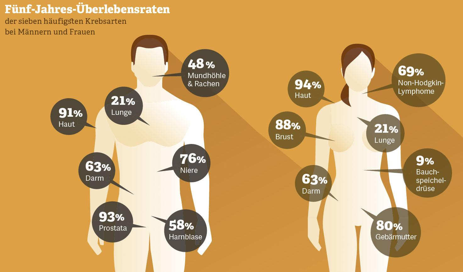 Grafik: Fünf-Jahres-Überlebensraten häufiger Krebsarten bei Mann und Frau