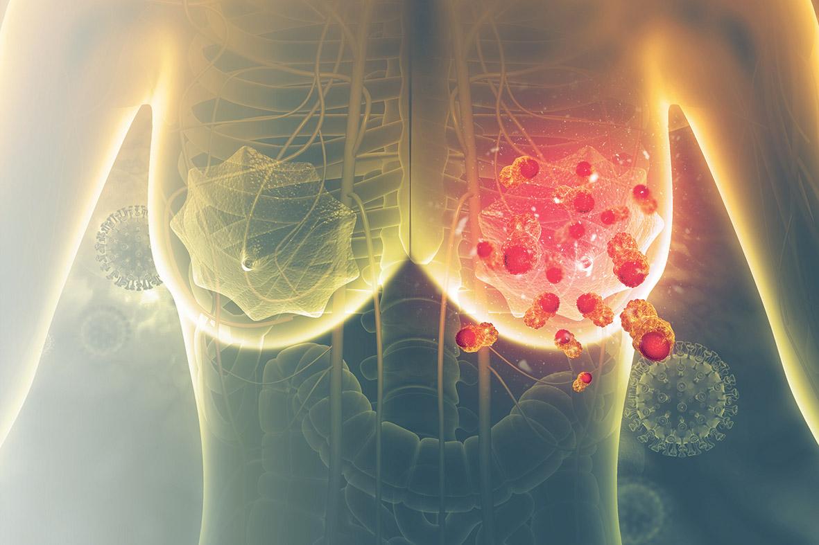 Vom Krebs befallene Lymphknoten in der weiblichen Brust