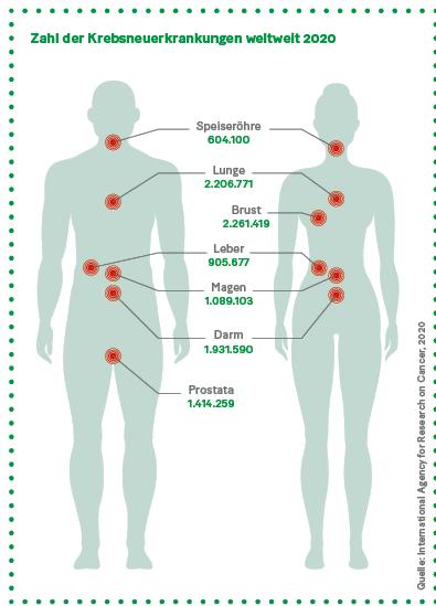 Grafik: Zahl der Krebsneuerkrankungen weltweit 2020