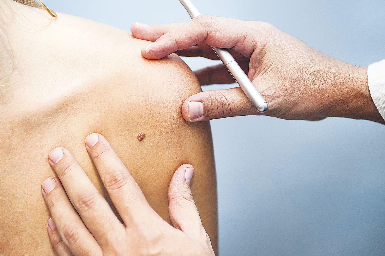 Muttermal-Untersuchung beim Hautarzt, Thema: Malignes Melanom